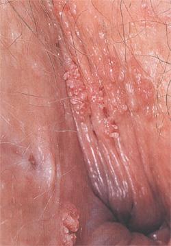 Как удалить папилломы из носа